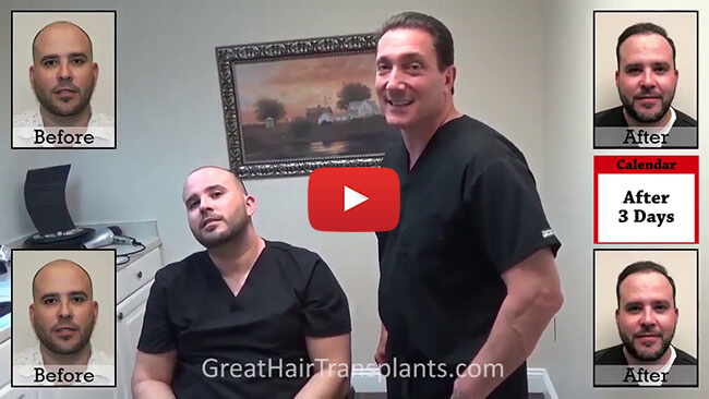 Hair Transplants Video in fort lauderdale , florida