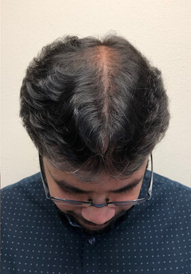 hair transplant before after Photos