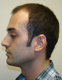 Hair Transplant Images