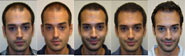 Hair Transplant Stages